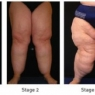 Can you recognise Lipoedema?
